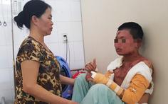 Nam sinh bị bỏng nặng vì bếp cồn trước ngày thi THPT