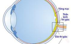 Teo dây thần kinh thị giác: Bệnh thường gặp ở người lớn tuổi