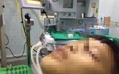 Một thiếu niên bị đinh găm vào hốc mắt do dùng súng tự chế