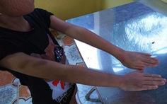 Tiếp thu bài chậm, bé 9 tuổi bị 'cô giáo' dạy thêm đánh tím tay