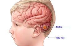 U tiểu não ở trẻ em