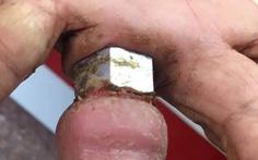 Bà cụ 75 tuổi lấy ốc bulông làm nhẫn suýt mất ngón tay