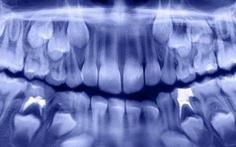 Nhổ bỏ 526 chiếc răng trong miệng bé 7 tuổi