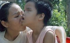 Nhật Bản hỗ trợ Việt Nam phòng chống các bệnh liên quan tới chất độc da cam dioxin