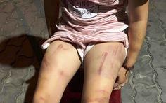Xác minh vụ cháu bé 6 tuổi bị đánh lằn roi khắp người