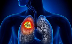 Một số dấu hiệu trên mặt giúp nhận biết sớm ung thư phổi