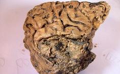 Kinh ngạc mô não người vẫn 'còn nguyên' sau 2.600 năm