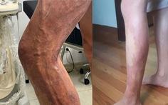 Hành trình xóa 'rễ cây' trên chân
