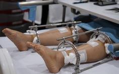 Đi tìm chiều cao mơ ước - Kỳ 1: Quyết tâm chịu đau kéo chân cao thêm 5cm