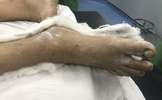 Bác sĩ BV Chợ Rẫy xuống Bến Tre cứu kịp người bị máy cưa cắt vào chân