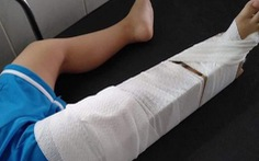 Tạm đình chỉ cô giáo làm bé 3 tuổi gãy xương đùi trong lớp