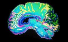 Kết quả nghiên cứu mới về cấu trúc não bộ của người phạm tội nhiều lần