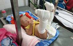 Người cha thừa nhận bạo hành bé 4 tháng tuổi gãy xương, xuất huyết não