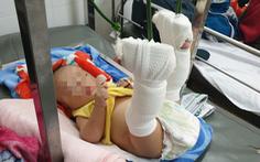 Bắt người cha bạo hành con 4 tháng tuổi xuất huyết não, gãy chân