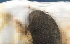 Bé gái 11 tuổi có khối u toàn... tóc trong dạ dày