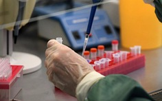 Nhà sản xuất vắc xin Sputnik V yêu cầu cơ quan quản lý dược EU xin lỗi