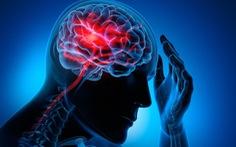 Đột quỵ ở người trẻ tuổi: triệu chứng mắc COVID-19?