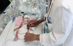 Mổ cứu sống trẻ sinh non, nhẹ ký bị tắc ruột ngay khi rời bụng mẹ