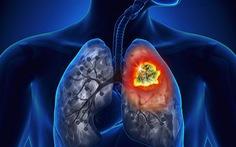 Phát triển phương pháp điều trị ung thư phổi mới đầy hứa hẹn
