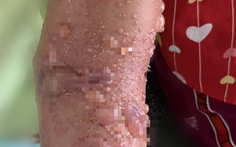 Bé gái nhập viện nghi do bị bỏng sứa trong lúc tắm biển