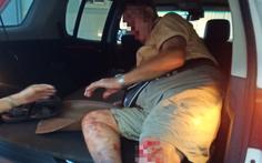 Ông tây 'cực ngầu' chặn xe ngược chiều hôm trước, hôm sau bị tai nạn