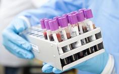 Phương pháp xét nghiệm máu phát hiện sớm 5 bệnh ung thư