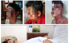 Ba thanh niên bị công an xã đánh nhầm 'máu me be bét'?