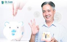 Bí quyết trồng răng Implant toàn hàm hiệu quả cao, chi phí ít