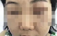 Mặt sưng phù, nổi mẩn đỏ vì tiêm 'tế bào gốc Hàn Quốc'