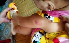 Bé 21 tháng tuổi đi học bị nhiều vết cắn tím người, mạng xã hội bảo 'cô cắn'