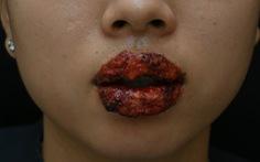 Môi sưng, rỉ mủ khi xăm môi ở thẩm mỹ viện
