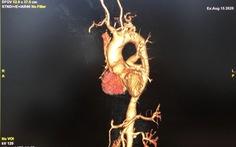 Mắc chứng viêm động mạch Takayasu hiếm gặp lại ngỡ thoái hóa khớp...
