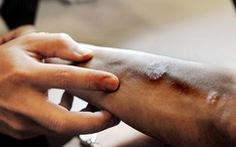 Nhiều bệnh về da bùng phát, trở nặng khi rét đậm
