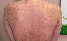 Nạn nhân tiêm silicon: 'Chích đại vào mặt, môi, ngực, mông... ai xui thì ráng chịu'