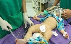 Điều trị lồng ruột ở trẻ em bằng kỹ thuật bơm hơi tại BVĐK Tâm Trí