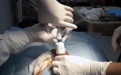 Mua thuốc tê về tự cắt bao quy đầu, thiếu niên 16 tuổi nhập viện cấp cứu
