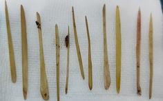 Phẫu thuật lấy 11 cây tăm xỉa răng làm thủng ruột người đàn ông