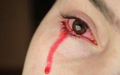 Người phụ nữ Ấn Độ mắc chứng bệnh 'kinh nguyệt thay thế ở mắt'