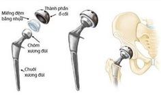 Khớp háng nhân tạo - cứu cánh giúp bệnh nhân gãy cổ xương đùi tránh tàn phế