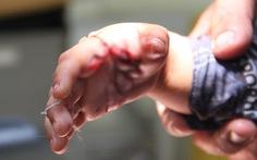 Bé trai 34 tháng tuổi bị cá sấu nhà nuôi cắn nhiều chỗ trên tay