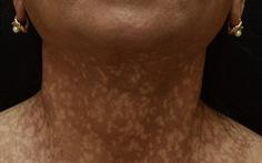 Người phụ nữ mắc bệnh hiếm gặp, mặt, cổ lốm đốm, rụng tóc và lông mày