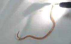 Giun đũa dài 15cm còn sống trong ống tụy của bé trai 5 tuổi