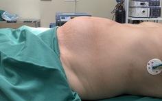 Tự ý điều trị bằng thuốc nam, khối u xơ tử cung to lên 4kg