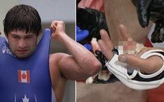 Đang thi đấu, võ sĩ MMA bị xử thua 'nốc ao' vì bị... cụt mất ngón tay