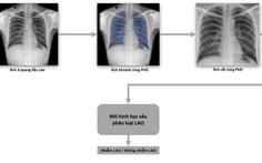 Phát hành sách trắng về ứng dụng trí tuệ nhân tạo cho chẩn đoán và tầm soát bệnh lao