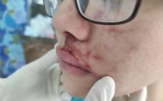 Tiêm filler vùng mặt, cô gái trẻ phải nhập viện vì nhiễm trùng
