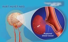 Chương trình thuyên tắc huyết khối tĩnh mạch ở người bệnh đột quỵ