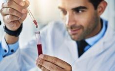 Anh thử phương pháp xét nghiệm giúp phát hiện sớm 50 loại ung thư