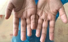 Tình người nơi tuyến đầu chống dịch: 'Nghẹn lòng đôi bàn tay nhăn rộp em tôi'
