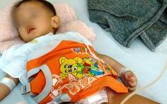 Lùi kế hoạch điều trị cho bé bị cắt nhầm bàng quang